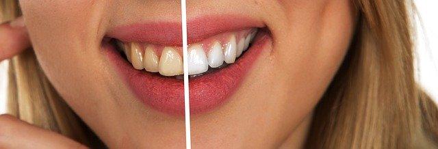 Bělejší zuby může mít každý